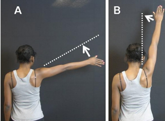 Photograph of patient showing range of motion